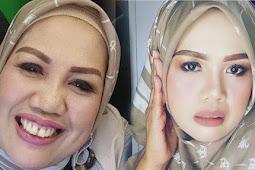 Usai Operasi Plastik dan Potong Gigi, Penampilan Baru Elly Sugigi Bikin Pangling Disebut Mirip AUREL