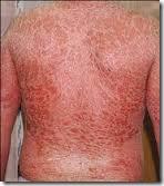 psoriase-erotrodermica