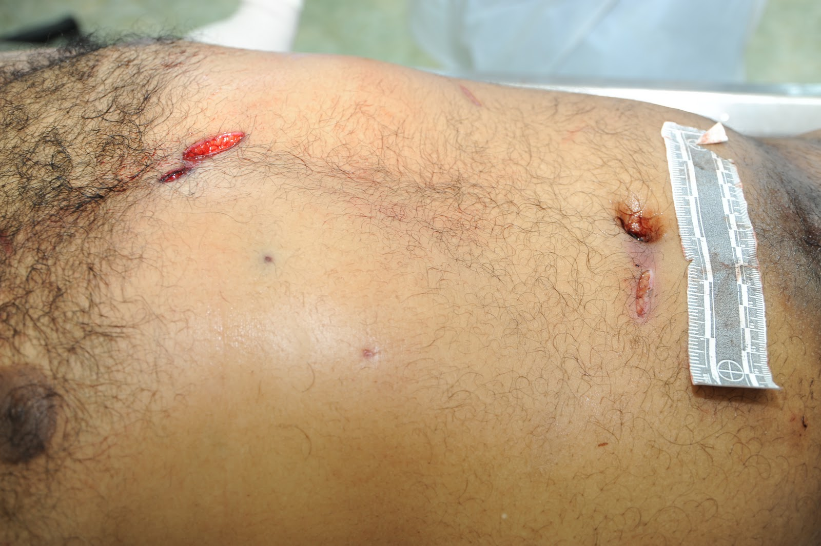 stab wounds bing images