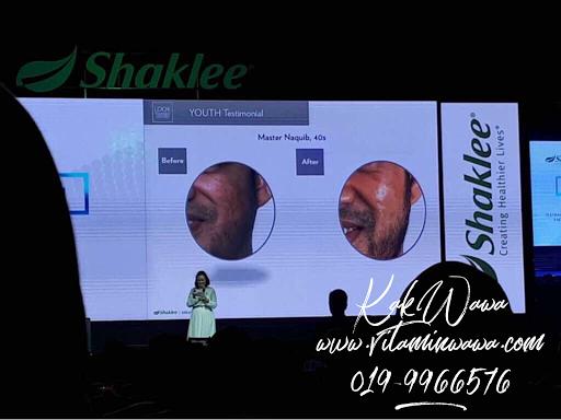 Testimoni Youth Skincare Shaklee dari Malaysia, Testimoni Youth Skincare Shaklee dari orang malaysia,  youth skincare shaklee, youth skincare, Set Penjagaan Wajah Awet Muda Shaklee, Set Penjagaan Wajah Shaklee, Youth Look Younger Longer, Youth Skincare Shaklee, Pengedar Shaklee Johor, Pengedar Vivix Johor, Pengedar Vivix Shaklee, Bulan March Skin Care Terbaru Di Lancarkan, Pengedar Shaklee pengerang, pengedar shaklee set skin care shaklee, Set Skincare terbaik, skin care semulajadi, skincare shaklee untuk kulit berminyak skincare shaklee untuk kulit kering skin care shaklee untuk jerawat testimoni skin care shaklee skin care shaklee untuk jeragat harga skincare shaklee   Testimoni, Testimoni Vivix, Vivix shaklee, Pengedar Shaklee Johor, Pengedar Vivix Johor, Pengedar Vivix Shaklee, vivix shaklee reviews shaklee vivix side effects vivix shaklee harga 2016 vivix shaklee price vivix shaklee testimonials vivix shaklee cancer vivix shaklee ingredients shaklee vivix malaysia shaklee vivix side effects vivix shaklee cara makan vivix untuk sakit buah pinggang ubat buah pinggang paling mujarab makanan untuk pesakit buah pinggang cara mencegah sakit buah pinggang buah pinggang rosak penawar sakit pinggang daun sup cuci buah pinggang tanda sakit buah pinggang tahap 4 ubat sakit pinggang yang mujarab does shaklee vivix work vivix shaklee cara makan shaklee vivix cancer shaklee vivix ingredients shaklee vivix benefits shaklee vivix review shaklee vivix price shaklee vivix testimonials Images for shaklee vivix cancer shaklee cancer testimonials shaklee cancer treatment nutriferon and cancer nutriferon negative side effects shaklee nutriferon side effects does shaklee vivix work shaklee vivix side effects shaklee vivix testimonials vitalea for children  Makanan Kesihatan Shaklee Untuk Kanak-Kanak, Multivitamin Kana-kanak, Product, Produk, Produk Label, Vita-Lea For Children, Vita-Lea For Kids, Pengedar shaklee johor, pengedar vivix johor pengedar shaklee pengerang pengedar vivix s