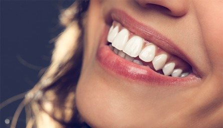 teeth-whitening-DIY-Mystylespots