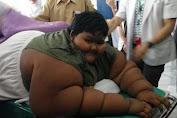 Awas Saat Ini Rentan Terjadi Peristiwa Obesitas Anak