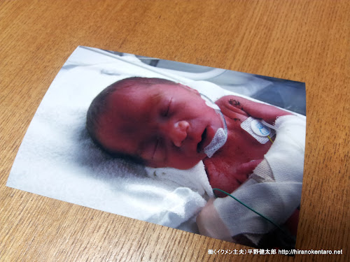 NICU(新生児集中治療室)で頑張っている3女