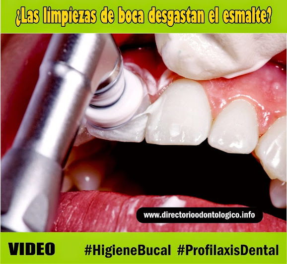 profilaxis-dental