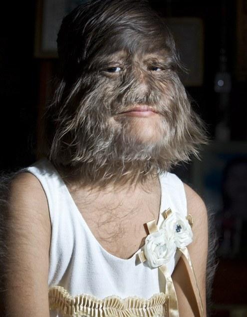 Supatra Sasuphan, Manusia Paling Berbulu di Dunia Seperti Serigala dan Kera (Monyet)