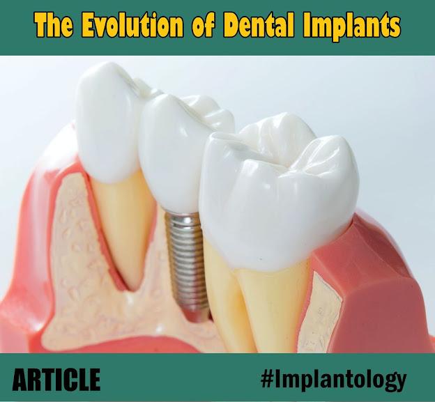 Evolution-Dental-Implants