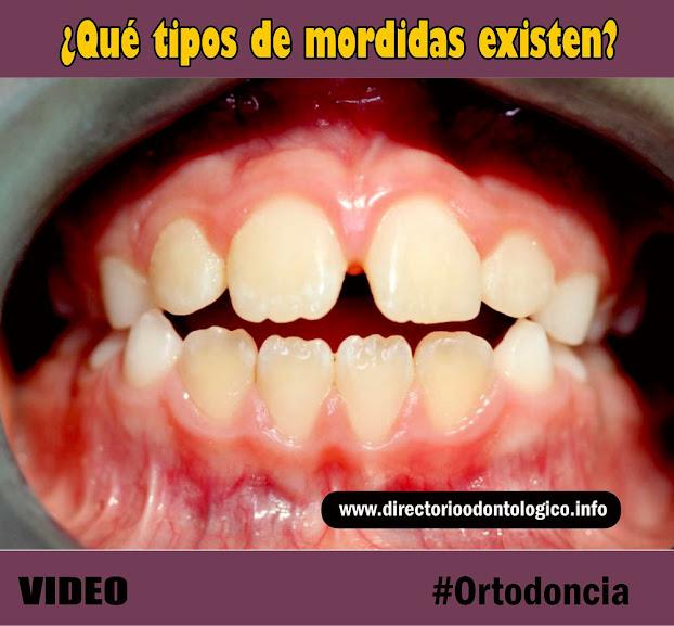 tipos-mordida-ortodoncia