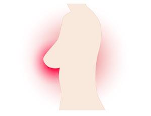 Sigo siendo yo, campaña visibilización cáncer de mama