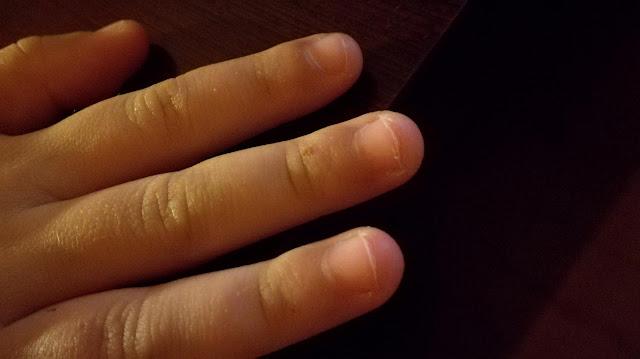 Onicofagia infantil: mi hija se muerde las uñas