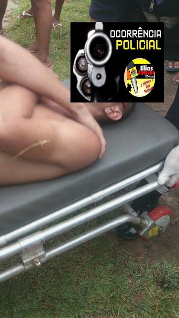 Santarém/PA: Depois de noite de bebedeira jovem leva golpe de terçado na cabeça no residencial Salvação