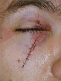 Så kan det gå om man spelar hockey utan riktigt ansiktsskydd.