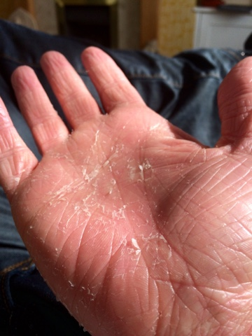 Why are the palms of my hands peeling