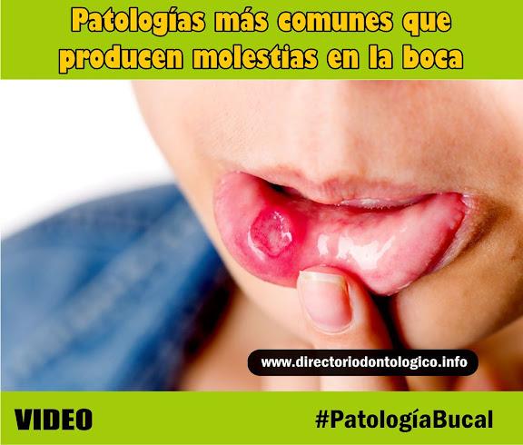 patología-bucal-afta