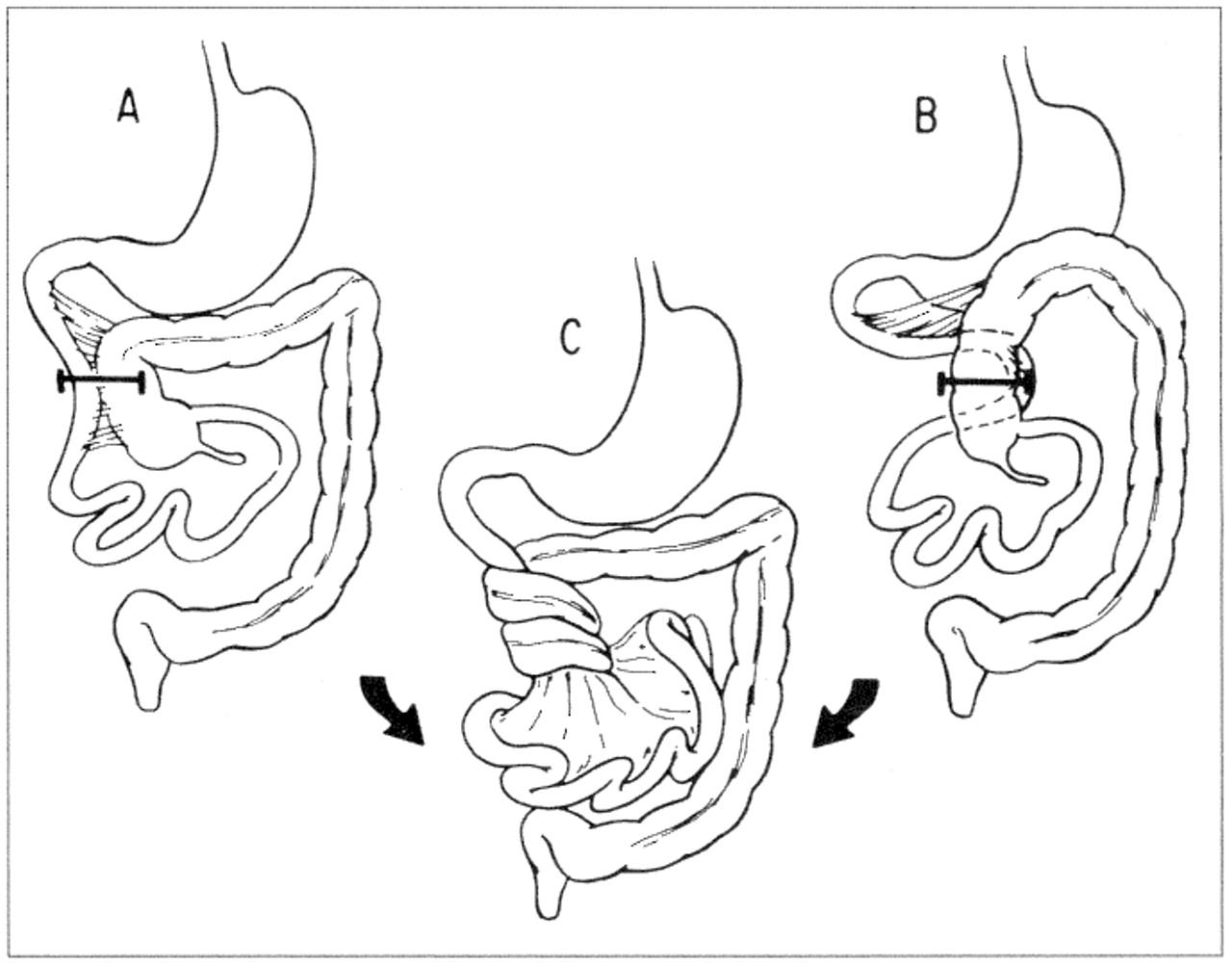 Dr Keyur Bhatt Case Complete Intestinal Malrotation