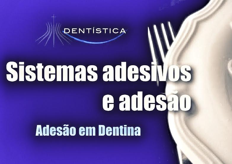 adesivos-dentais