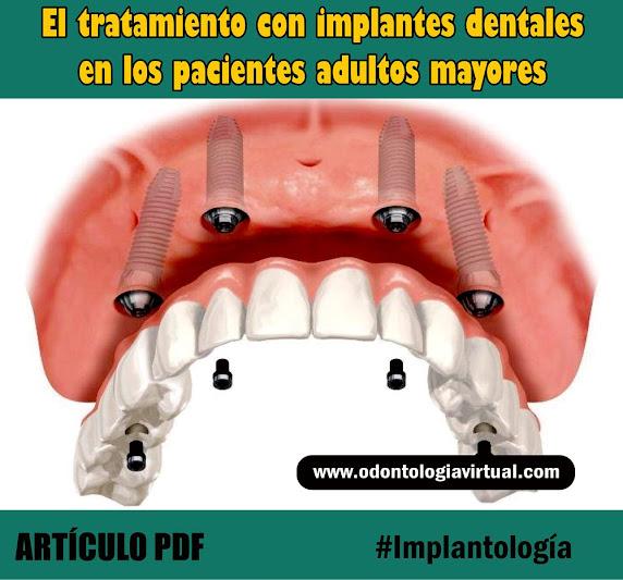 implantes-dentales-tercera-edad
