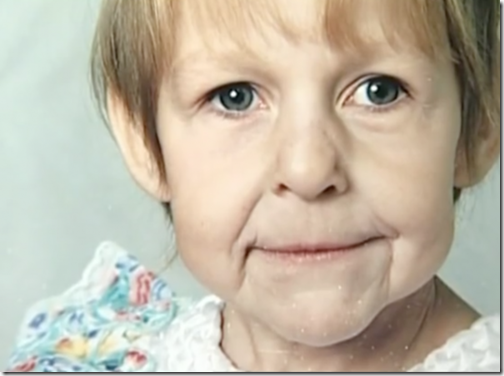 progeri1