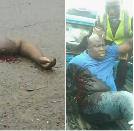 Man Loses Arm In Ghastly Motor Accident (Photo)