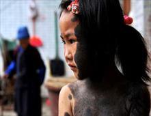 طفلة مستذئبة تخلت عنها عائلتها في الصين