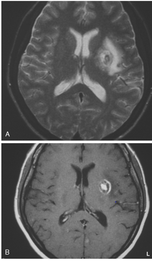 abnormal mri brain