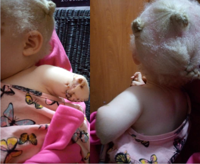 Toddler's hand chopped off by albino hunters pretending to be police officers