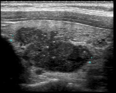 cancer tiroidian ecografie