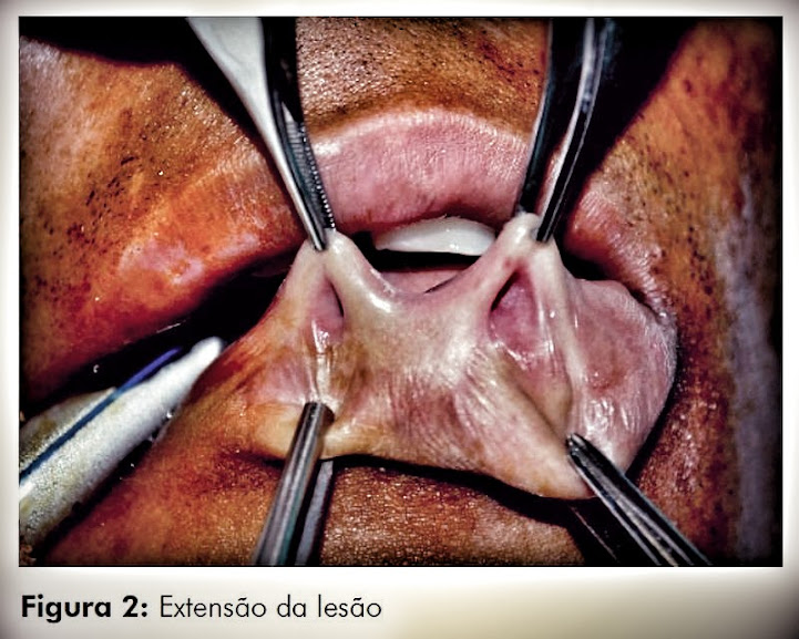 Fossetas-labio-inferior