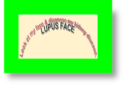 lupus membranous nephropathy lupus membranous nephropathy long-term outcome membranous lupus nephropathy icd 10 lupus membranous nephritis membranous lupus nephritis antibody lupus nephritis and idiopathic membranous nephropathy lupus and membranous nephropathy what is membranous lupus nephritis rituximab for lupus membranous nephropathy treatment of lupus membranous nephropathy what is lupus membranous nephropathy how long can you live with membranous nephropathy is membranous nephropathy an autoimmune disease membranous lupus nephritis nephrotic syndrome