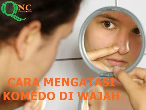 Cara Menghilangkan Komedo Dengan Masker QNC Jelly Gamat