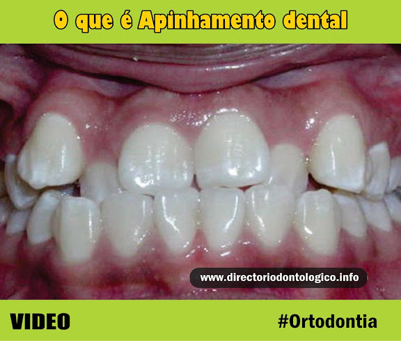 Apinhamento-dental