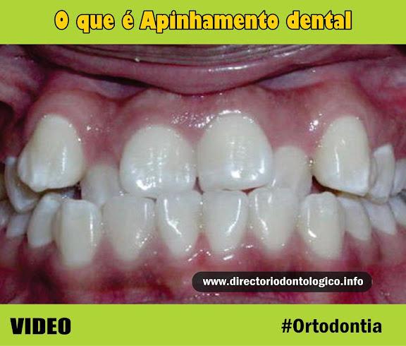 Apinhamento-dental