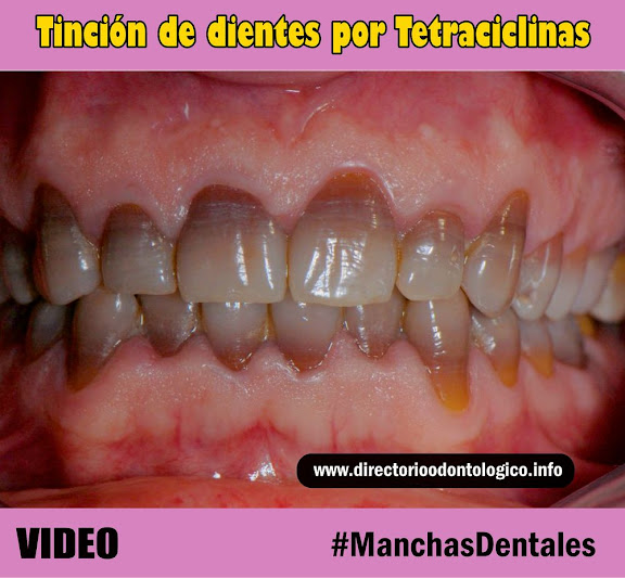 manchas-dentales-tetraciclinas