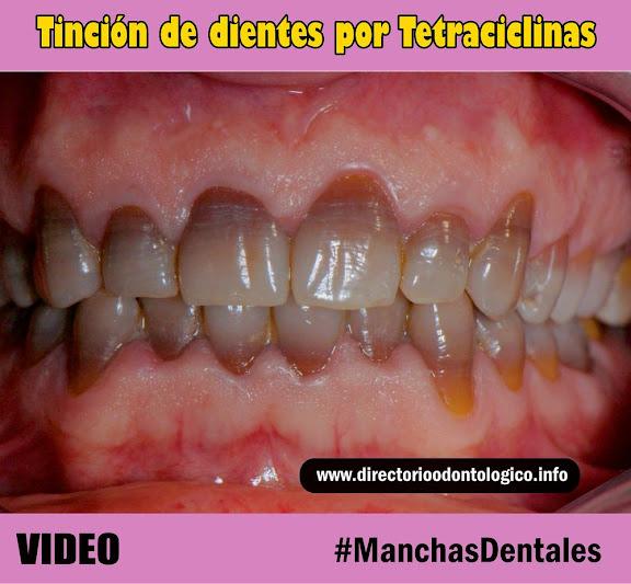 manchas-dentales-tetraciclinas