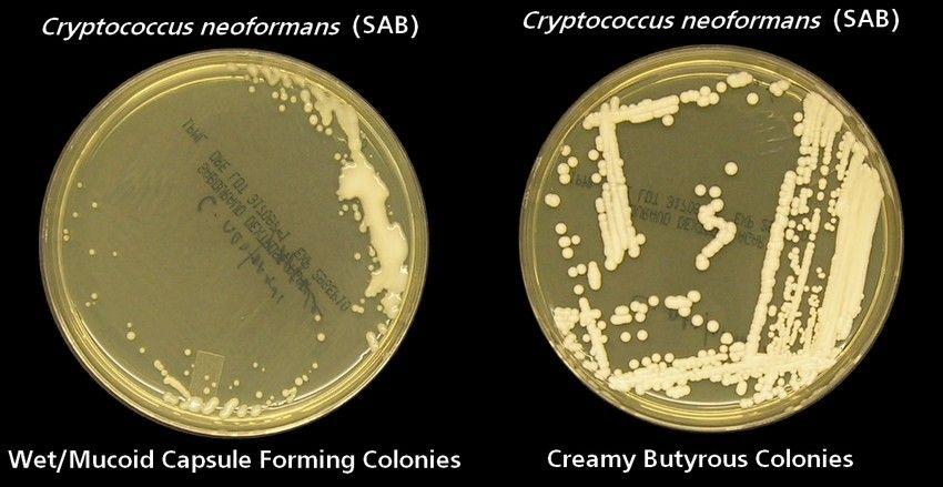 [Image: Cryptococcus_neoformans_SAB_Plates.jpg]