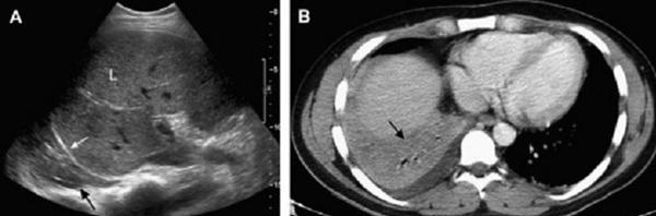 ultrasound 3