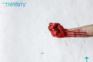 فقر الدم: الانواع، الاعراض، الاسباب.