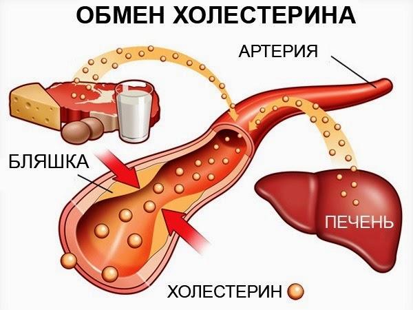 как убрать холестерин в сосудах
