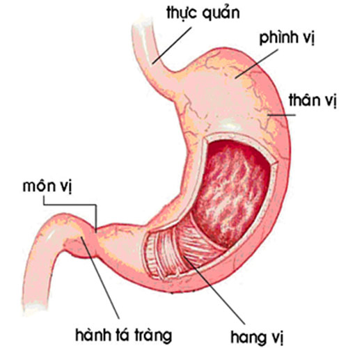 bệnh viêm dạ dày mạn tính
