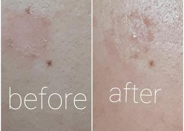 """#Askraneey3 """"Apa produk perawatan kulit yang baik untuk menyamarkan bahkan menghilangkan noda hitam di wajah?"""""""