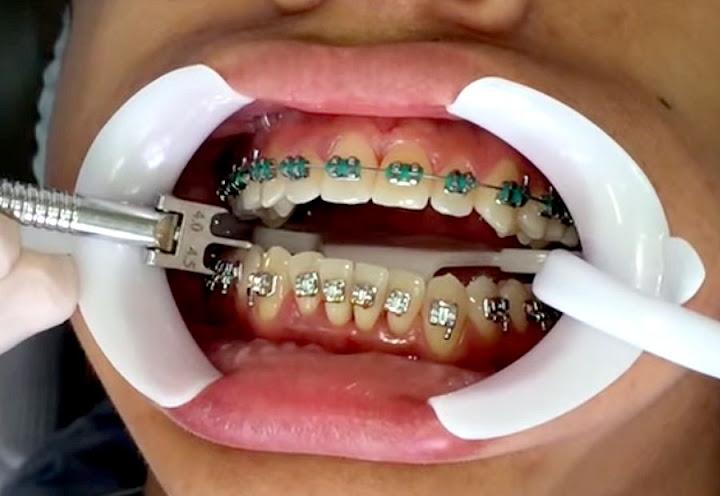 Montagem-Aparelho-ortodontia