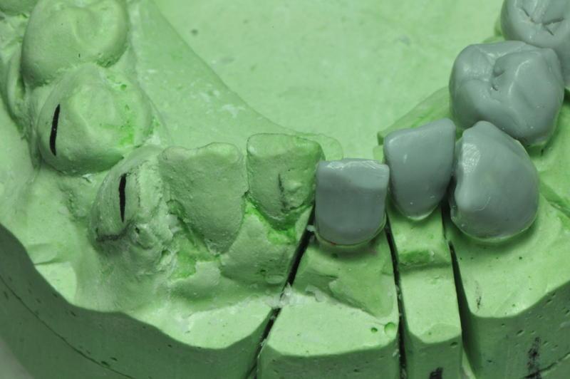 ���� Lower teeth ����� ���� DSC_1958.JPG
