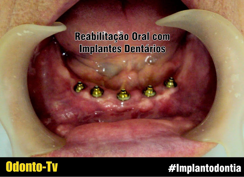 implantes-dentarios