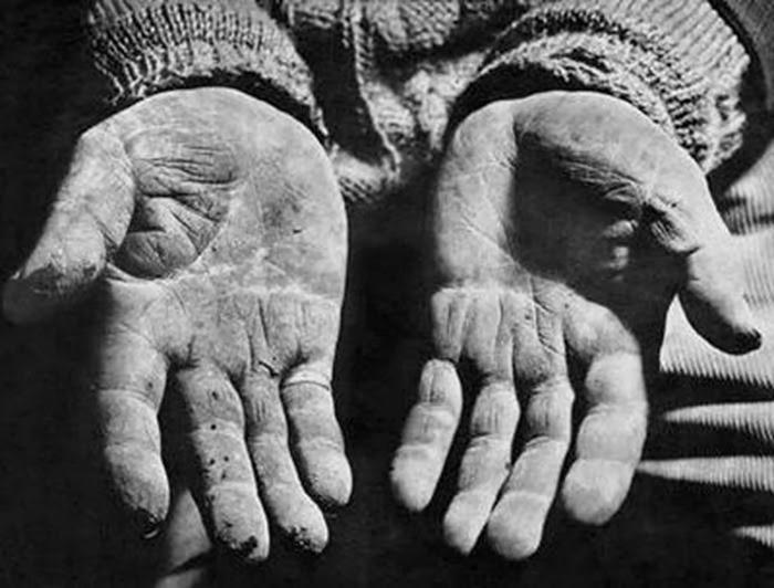 Mãos calejadas de trabalho