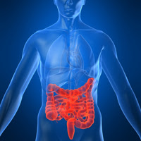 Colon Most Cancers: Dangers and Prevention post image