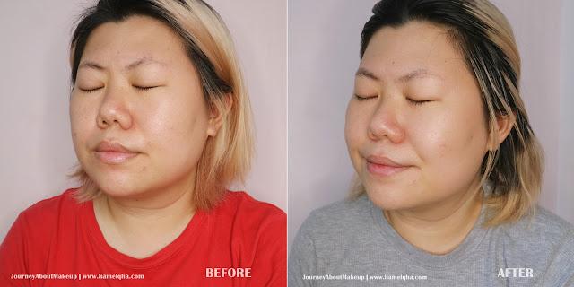 Avoskin-Marine-Collagen-Before-After-1