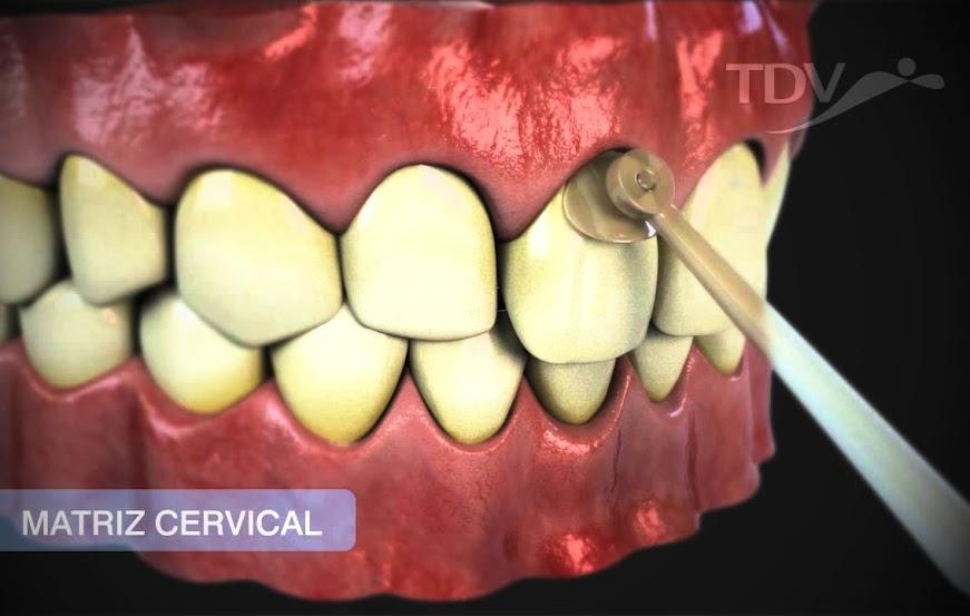 matriz-cervical-tdv