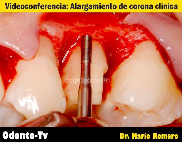 alargamiento-corona-clinica