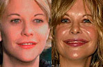 Celebrities with Plastic Surgery