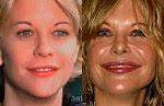 Famosas antes y después de la Cirugía