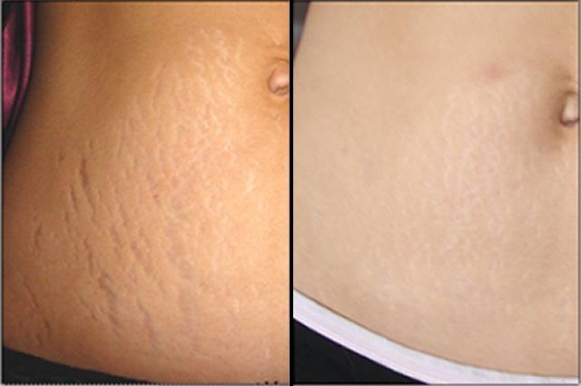Dermology-stretch-mark-Cream-review